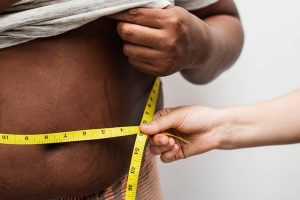 شفط الدهون للرجال