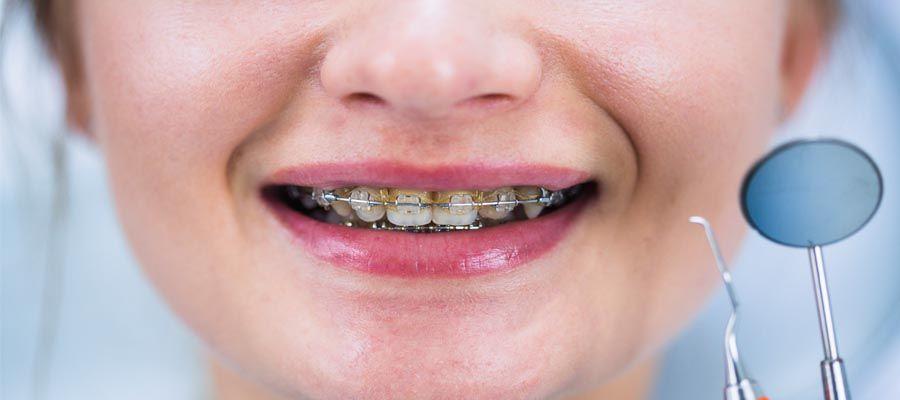 تقدير ممارسه الرياضه السلع تنظيف الاسنان خلال التقويم Merahmaron Com