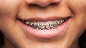 أسعار تقويم الأسنان في مصر