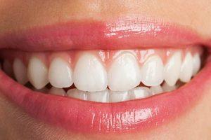 أفضل عيادات تجميل الأسنان في مصر