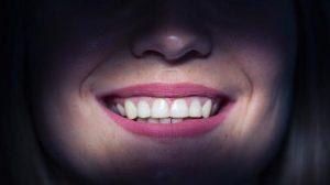 فينير الأسنان في القاهرة